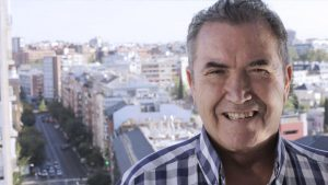 Lifting papada hombres | Clínicas Diego de León