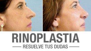 Resultados rinoplastia | Clínicas Diego de León