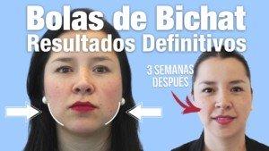 Resultados Bichectomía | Clínicas Diego de León