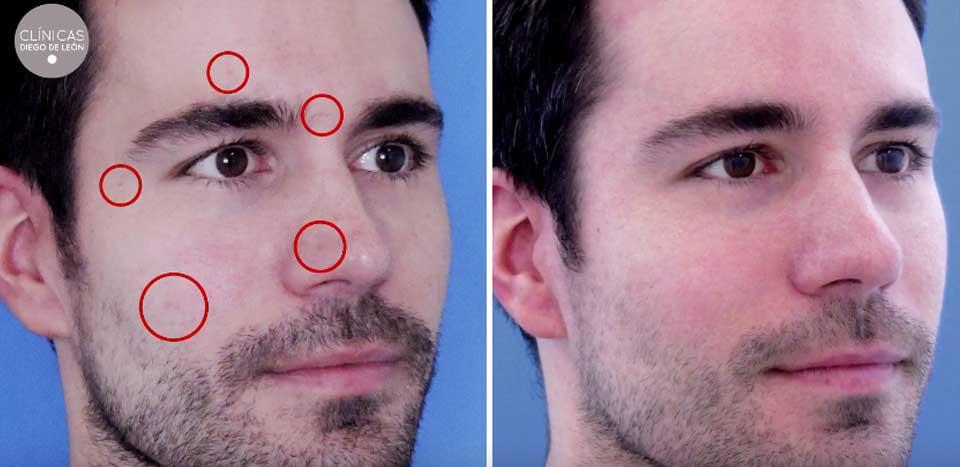 Eliminar Marcas de Varicela | Antes y después