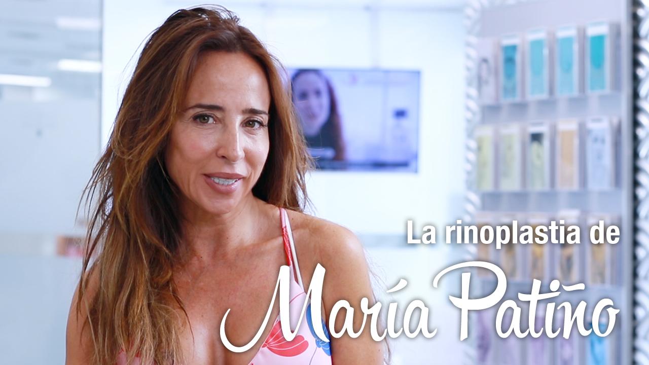 Rinoplastia María Patiño | Clínicas Diego de León