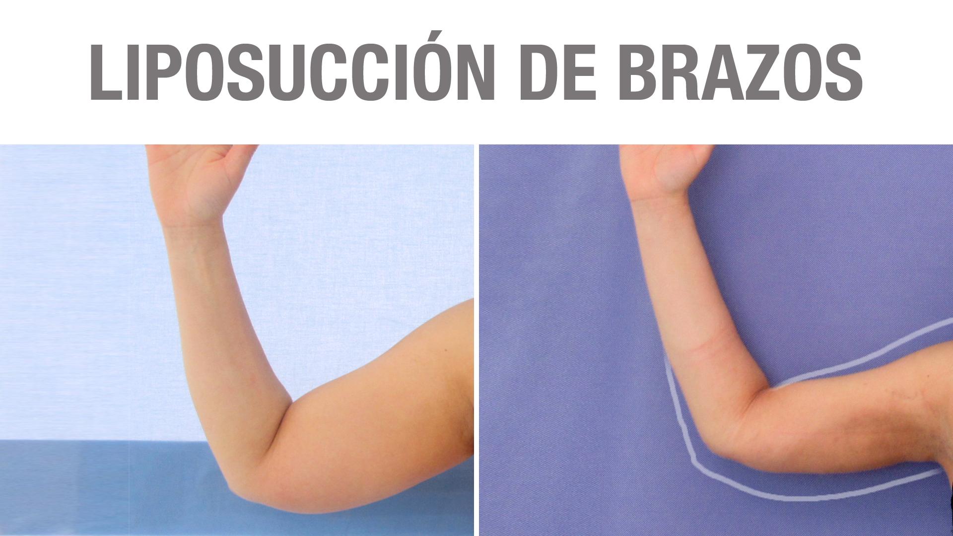 adelgazar brazos antes y despues del embarazo