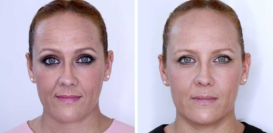 Antes y después bótox en la frente