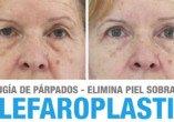 Resultados blefaroplastia | Clínicas Diego de León