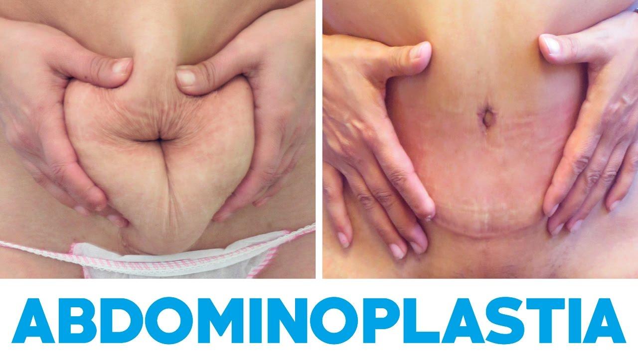 Abdominoplastia resultados | Clínicas Diego de León