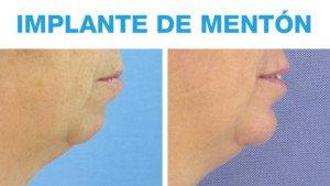 Antes y Después Implante de Mentón