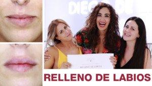 Aumento de Labios - Cristina Rodríguez - Cámbiame