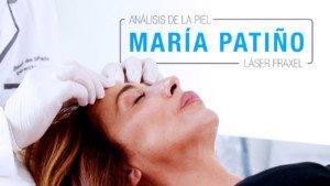 maria patiño tratamiento facial fraxel