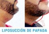 Liposucción Papada