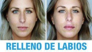 Ácido Hialurónico Labios - Resultados