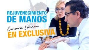 El tratamiento secreto de Carmen Lomana
