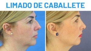 Operación de nariz: limado de caballete