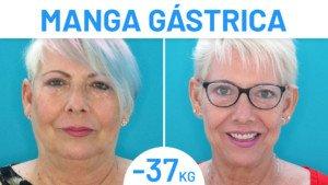 Antes y después paciente Manga Gástrica