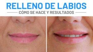 Cómo se hace el Relleno de Labios