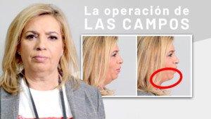 Carmen Borrego Elimina Papada - Clínicas Diego de León