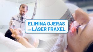 Eliminar ojeras con Láser Fraxel