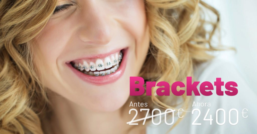 Promoción Brackets - Ortodoncia dental