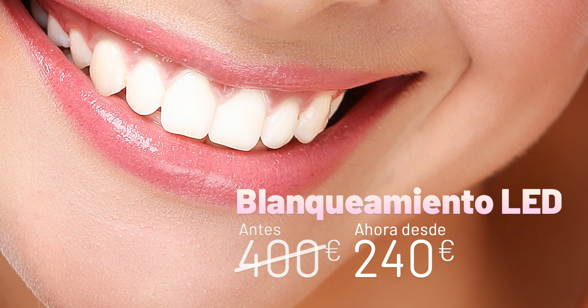 Promo_abril_Blanqueamiento_LED
