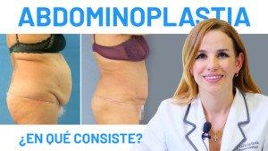 ¿Cómo se realiza una abdominoplastia?