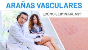 Cristina Rodríguez se realiza el láser vascular