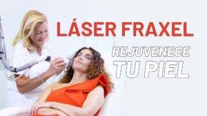 Cristina Rodríguez se realiza el Láser Fraxel Dual
