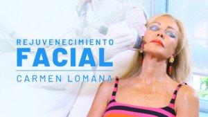 Carmen Lomana se realiza el Láser Fraxel Dual