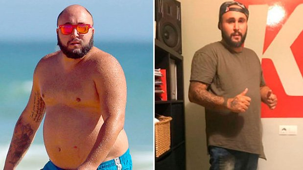 Reducción de estómago de famosos