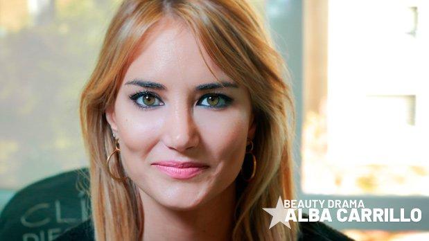 Eliminar Ojeras con laser - Alba Carrillo