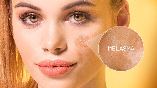 ¿Qué es el melasma facial?