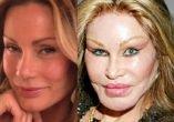Antes y Después - Los desastres de la silicona en la cara