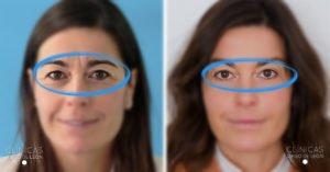 Antes y después botox entrecejo mujer