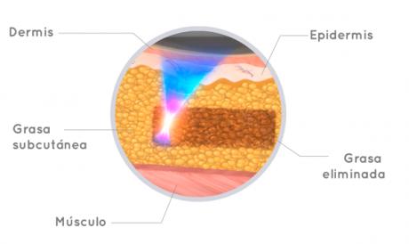 ¿Es posible eliminar la grasa localizada sin cirugía? La verdadera respuesta se llama liposonix