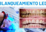 blanqueamienot dental led