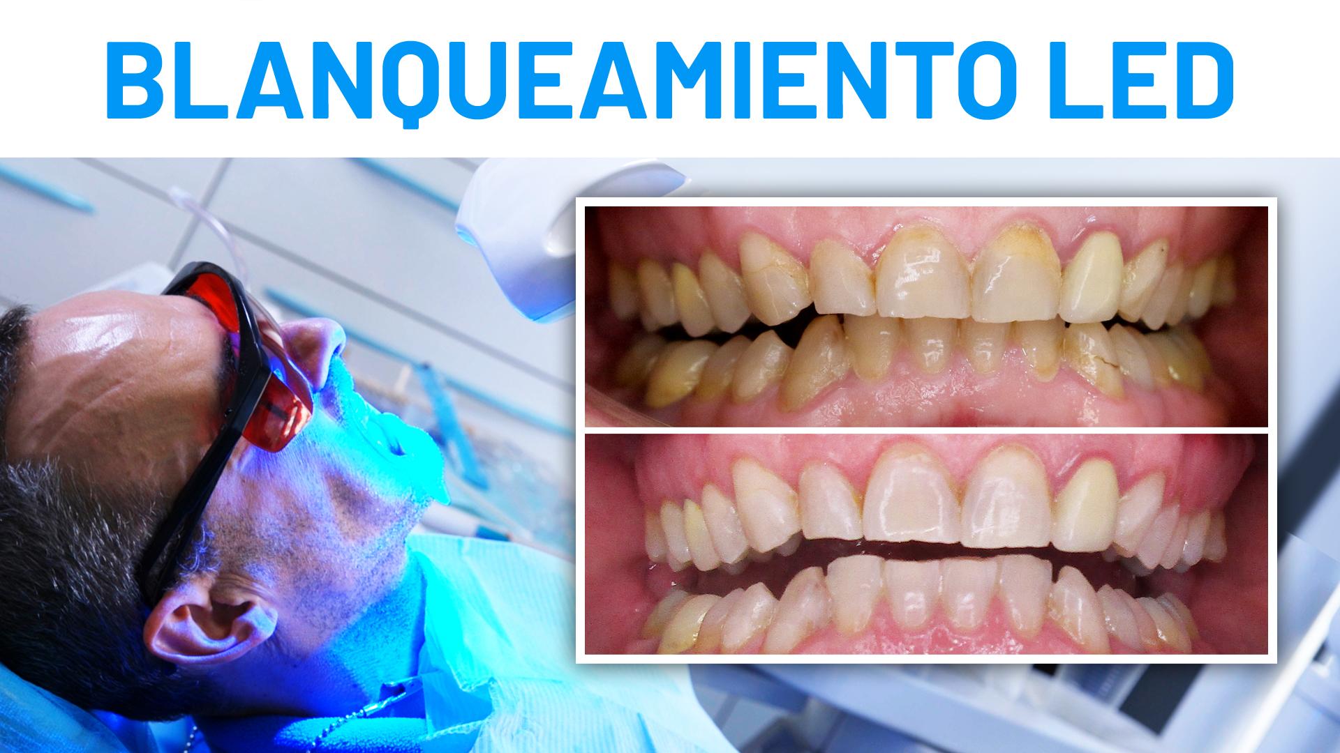 Blanqueamiento dental led - Antes y después