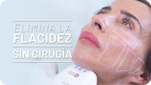 María Patiño elimina papada con Ultrasonidos HIFU [Vídeo]