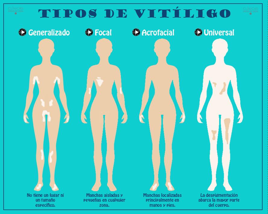 Tipos de vitiligo - Infografía - Clínicas Diego de León