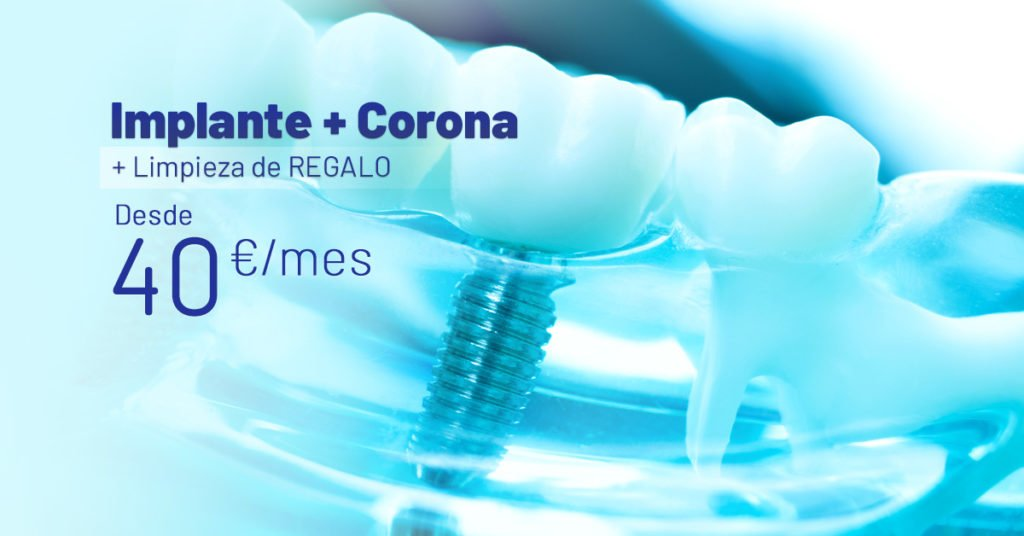 Promo_Implante_Corona_Dental
