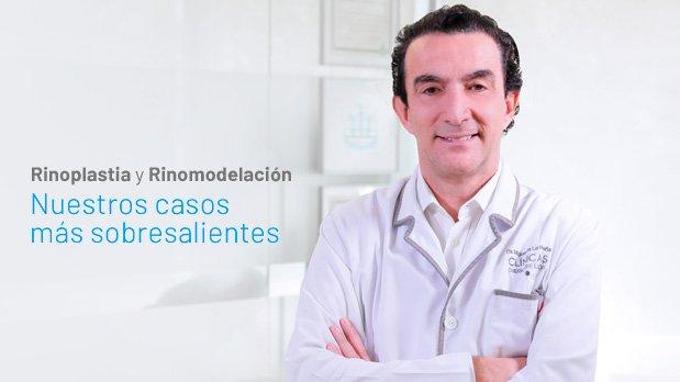 Mejores_Casos_Rinoplastia