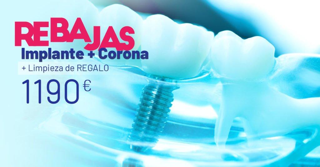 implante-corona
