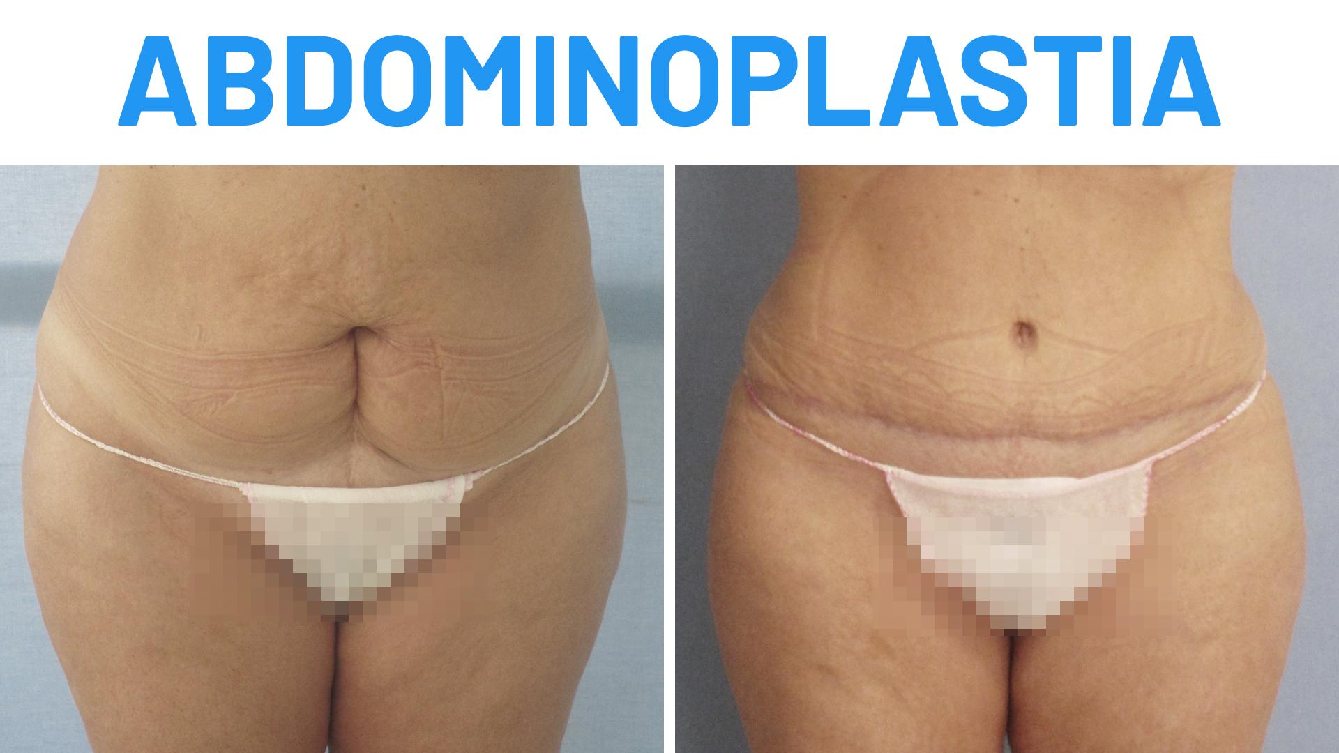 Abdominoplatia: Antes y Después