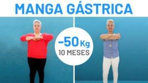 Perder 50 kg es posible gracias a la Reducción de Estómago [Testimonio]