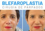 Cirugía de párpados resultados - Clínicas Diego de León