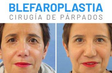 blefaroplastia-parpados-testimonio