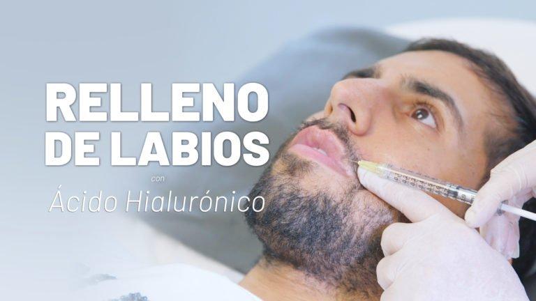 Ácido hialurónico labios hombres - Clínicas Diego de León
