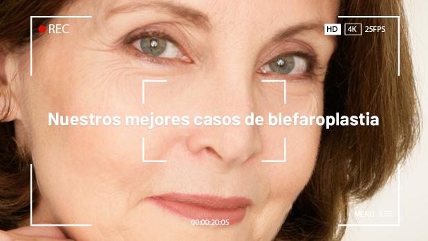 Mejores Casos de Blefaroplastia - Clínicas Diego de León