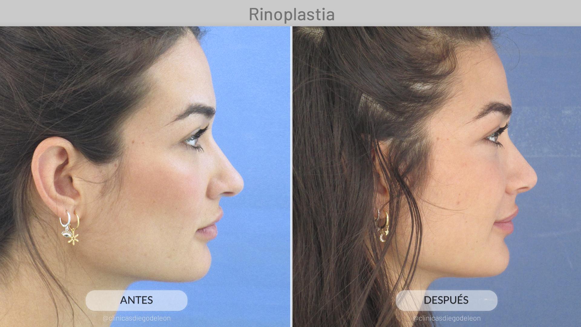 rinoplastia-antesydespues-estelagrande